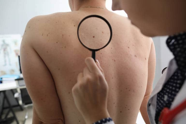 dermatologist checking a person's back with a magnifying glass